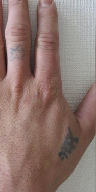 ジョウクリニックのタトゥー除去の症例写真[ビフォー]