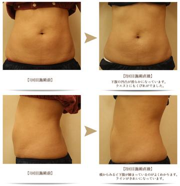 ワイズスキンケアクリニックの痩身、メディカルダイエットの症例写真