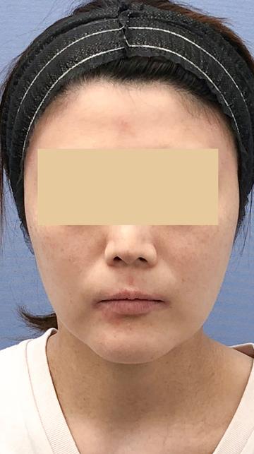 湘南美容クリニック 武蔵小杉院の脂肪吸引の症例写真[ビフォー]