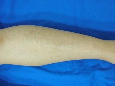 足全体の医療レーザー脱毛の症例写真[ビフォー]