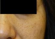 さやか美容クリニック・町田のホクロ除去・あざ治療・イボ治療の症例写真[アフター]