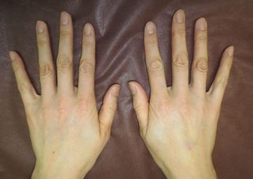 トキコクリニック 京都四条院の顔のしわ・たるみの整形(リフトアップ手術)の症例写真[アフター]