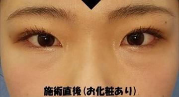 湘南美容クリニック赤羽院の目・二重の整形の症例写真[アフター]
