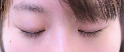 埋没法+脱脂で、パッチリ瞼に変身の症例写真[ビフォー]