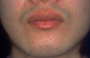 平岡皮膚科スキンケアクリニックの医療レーザー脱毛の症例写真[ビフォー]