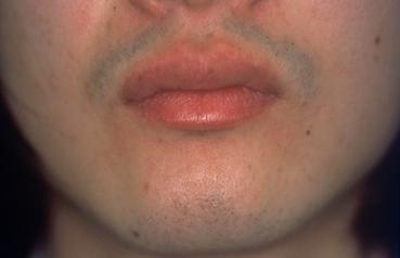 男性のヒゲ脱毛の症例写真[ビフォー]