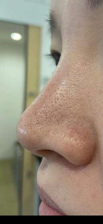 たにまちクリニックのシミ治療(シミ取り)・肝斑・毛穴治療の症例写真[ビフォー]