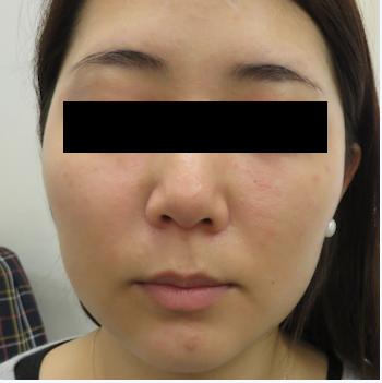 はなふさ皮膚科の顔の整形(輪郭・顎の整形)の症例写真[ビフォー]