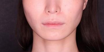 SELECT CLINIC(セレクトクリニック)の輪郭・顎の整形の症例写真[ビフォー]
