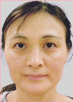 城本クリニックの目元の整形、くま治療の症例写真[ビフォー]