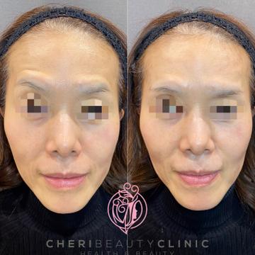 CHERI BEAUTY CLINIC (シェリビューティークリニック)の顔のしわ・たるみの整形(リフトアップ手術)の症例写真