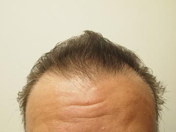 静岡美容外科橋本クリニックの薄毛治療・AGA・発毛の症例写真[ビフォー]