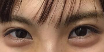 さっぽろ美容クリニック 本院の目元整形・クマ治療の症例写真[アフター]