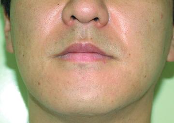 シロノクリニック恵比寿の医療レーザー脱毛の症例写真[アフター]