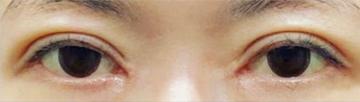 さっぽろ美容クリニック 本院の目・二重整形の症例写真[アフター]