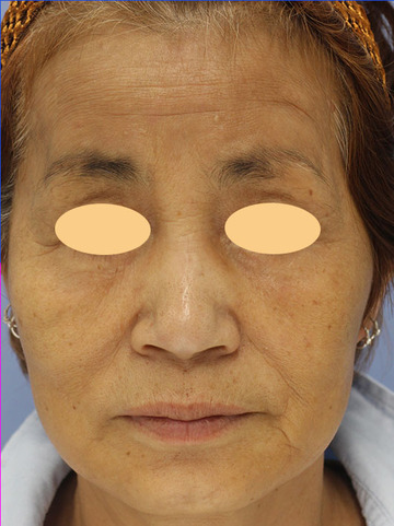 湘南美容クリニック 大阪堺東院の顔のしわ・たるみの整形(リフトアップ手術)の症例写真[アフター]