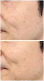 よだ形成外科クリニックのシミ治療(シミ取り)・肝斑・毛穴治療の症例写真