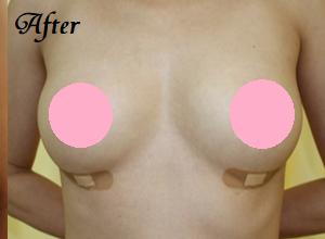 千葉中央美容形成クリニックの豊胸手術(胸の整形)の症例写真[アフター]