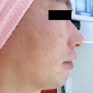 ドーズ美容外科のニキビ治療・ニキビ跡の治療の症例写真[アフター]