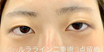 ルラ美容クリニック高田馬場院の目・二重の整形の症例写真[ビフォー]
