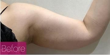 La Clinique Ginza(ラ クリニック銀座)の痩身、メディカルダイエットの症例写真[ビフォー]