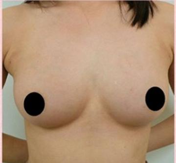 広島プルミエクリニックの豊胸手術(胸の整形)の症例写真[アフター]
