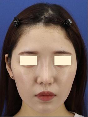 プロテーゼ入れ替え・鼻先の形成(肋軟骨)の症例写真[アフター]