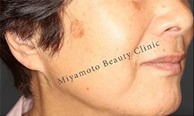 みやもと美容クリニックのシミ治療(シミ取り)・肝斑・毛穴治療の症例写真[ビフォー]