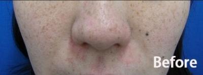 顔全体のシミ治療の症例写真[ビフォー]