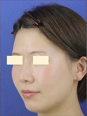 プロテーゼ・鼻中隔延長・鼻根部レディエッセ除去 術後3ヶ月の症例写真[アフター]