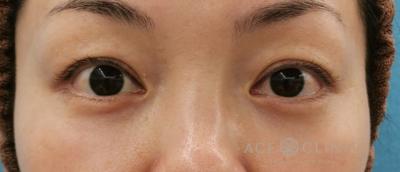 脱脂CRF法による目元のクマ治療の症例写真[アフター]