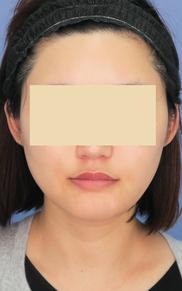 湘南美容クリニック武蔵小杉院の顔のしわ・たるみの整形(リフトアップ手術)の症例写真[アフター]