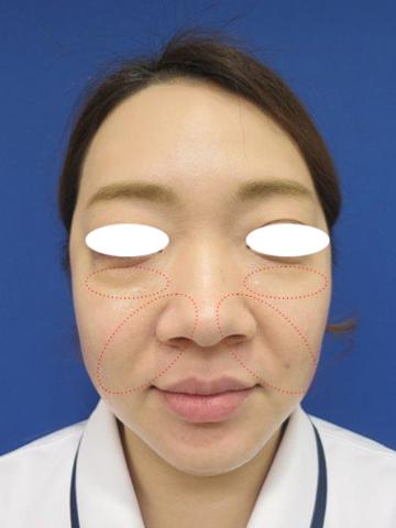 フェミークリニックのシワ・たるみ(照射系リフトアップ治療)の症例写真[ビフォー]