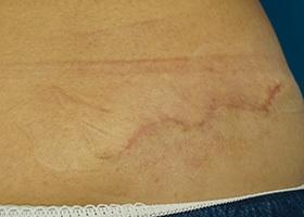 タトゥー除去(切除法) 術後1ヶ月(2回目から)[アフター]