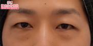 湘南美容クリニック銀座院の目元の整形、くま治療の症例写真[ビフォー]