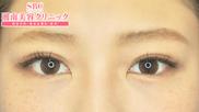 湘南美容クリニック静岡院の目・二重の整形の症例写真[アフター]