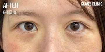 GLANZ CLINIC (グランツクリニック)の目元整形・クマ治療の症例写真[アフター]