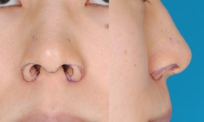 3D鼻翼縮小術の症例写真[ビフォー]