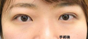 心斎橋コムロ美容外科クリニックの目・二重整形の症例写真[アフター]