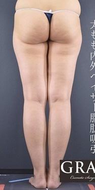 GRACIA clinic(グラシアクリニック)の脂肪吸引の症例写真[ビフォー]