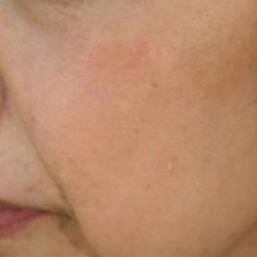 いしい形成クリニックのシミ治療(シミ取り)・肝斑・毛穴治療の症例写真[アフター]