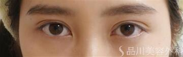 品川美容外科の目・二重の整形の症例写真[アフター]