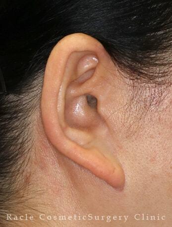 新宿ラクル美容外科クリニックの顔のしわ・たるみの整形の症例写真[ビフォー]