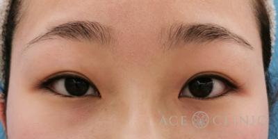 眼瞼挙筋前転術による眼瞼下垂治療の症例写真[ビフォー]