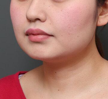 オザキクリニック LUXE新宿の脂肪吸引の症例写真[ビフォー]