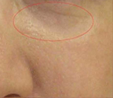 のシワ・たるみ(照射系リフトアップ治療)の症例写真[アフター]