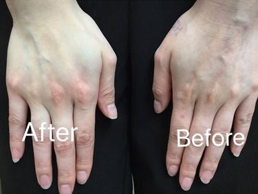 フロオキシゲンの効果の症例写真