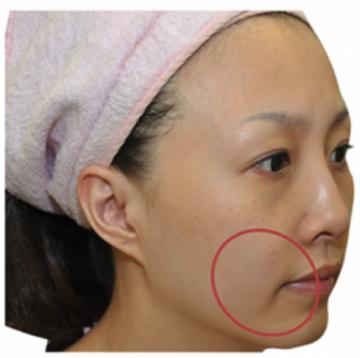 共立美容外科・歯科のシワ・たるみ(照射系リフトアップ治療)の症例写真[ビフォー]