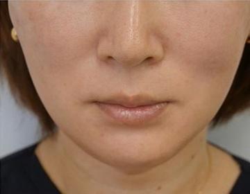 静岡美容外科橋本クリニックの顔のしわ・たるみの整形(リフトアップ手術)の症例写真[アフター]