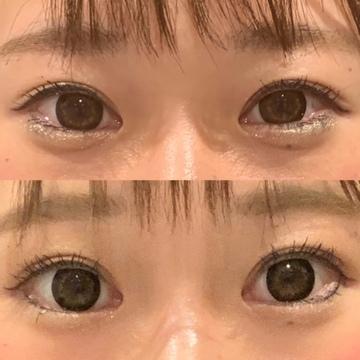 CHERI BEAUTY CLINIC (シェリビューティークリニック)の目元の整形、くま治療の症例写真
